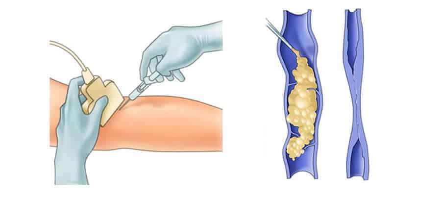Σκληροθεραπεία Ευρυαγγειών με Αφρό - Αγγειοχειρουργός