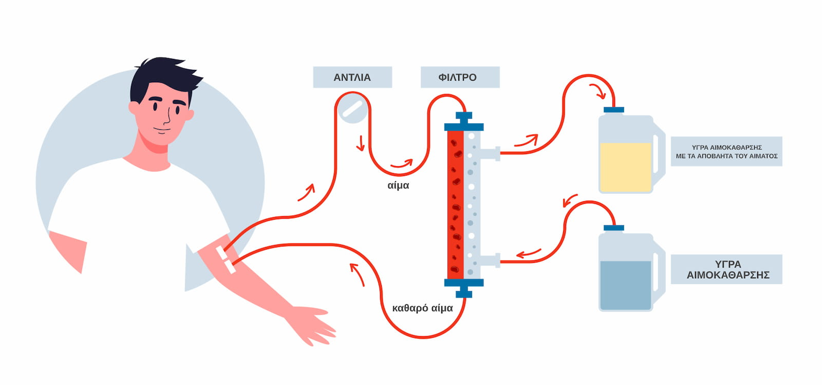 Αιμοκάθαρση - Νεφρική Αναπάρκεια
