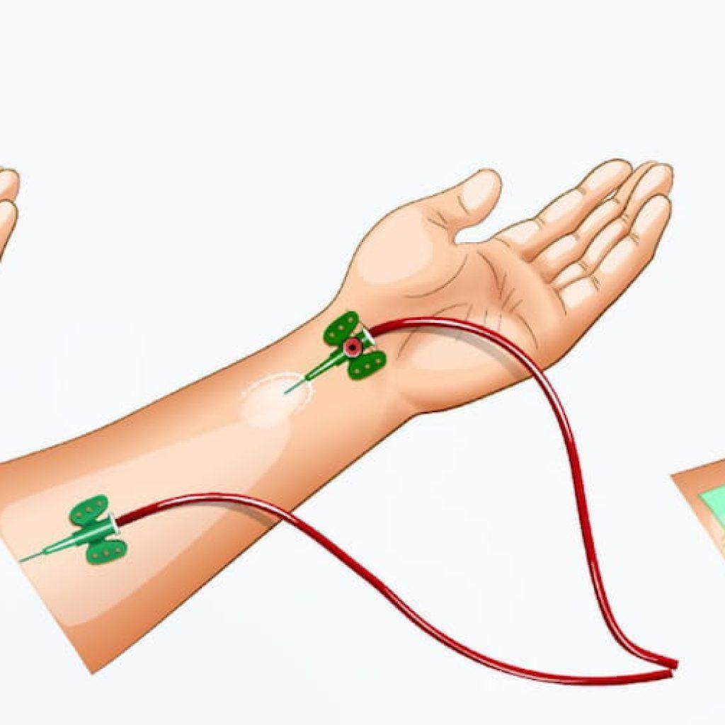Φιστουλα και Αιμοκάθαρση