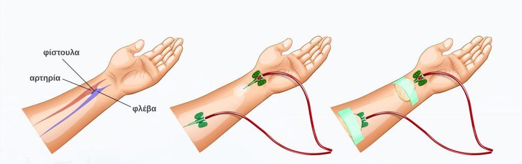 Τι πρέπει να ξέρεις πριν ξεκινήσεις αιμοκάθαρση; 1
